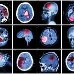 Paying Your Medical Bills After A TBI